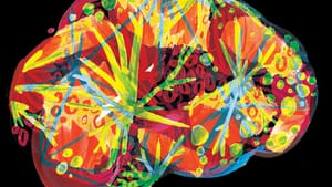Getting a new view of the brain. (Image courtesy of Jenny Kessler.)