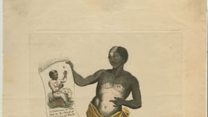 An 18th-century engraving shows a Black 15-year-old with vitiligo, wearing a loincloth and holding an illustrated scroll.